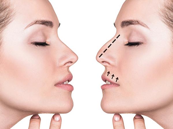 Ринопластика: современный способ исправления дефектов носа