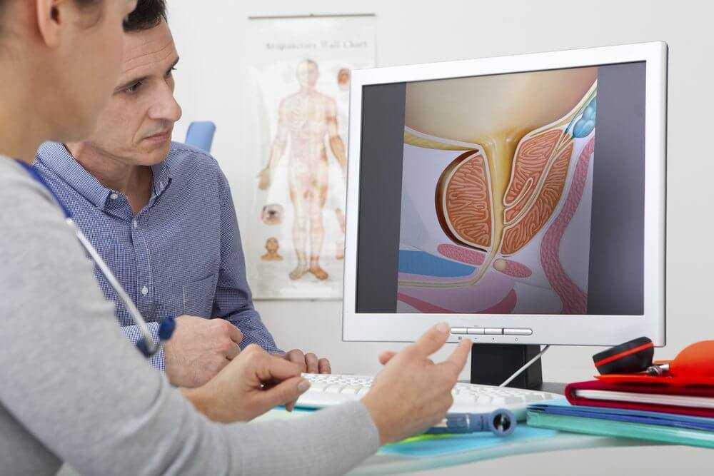Признаки аденомы простаты и ее лечение