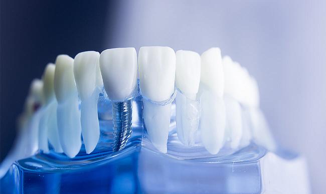Улыбайтесь во все 32 зуба