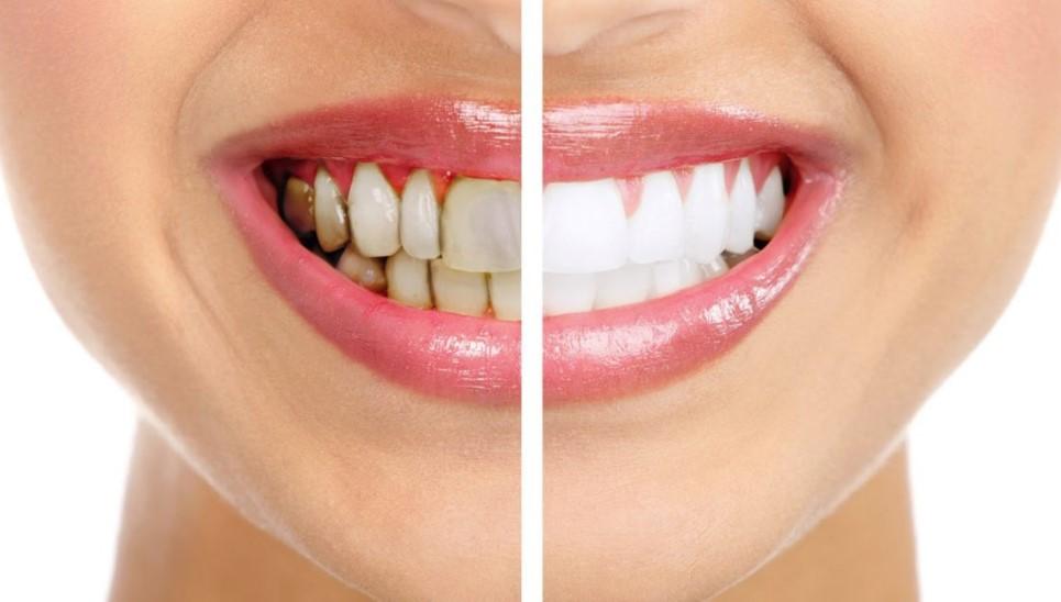 Чистка зубов: почему не обойтись без стоматологов?