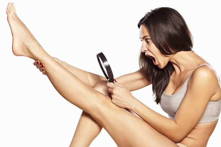 Лазерная эпиляция - основные сведения о процедуре удаления волос лазером
