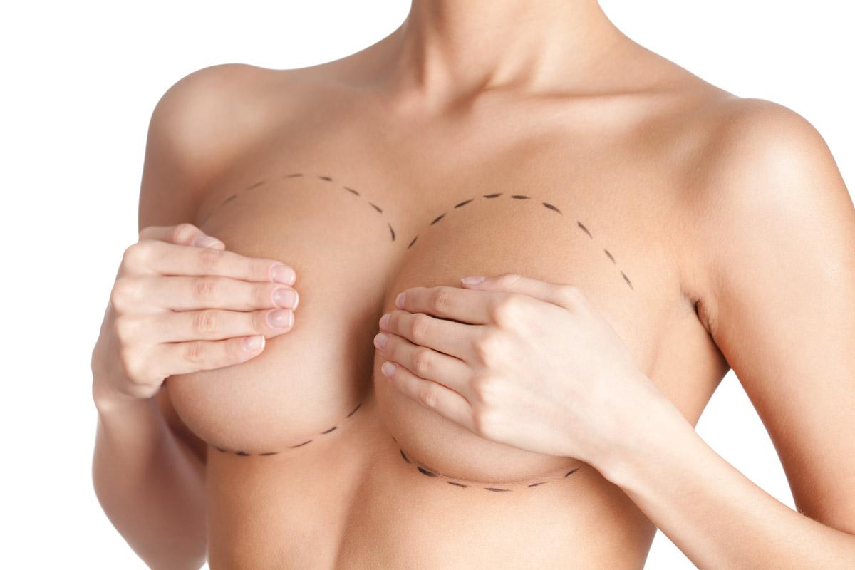 Сколько стоит операция по увеличению груди в Украине