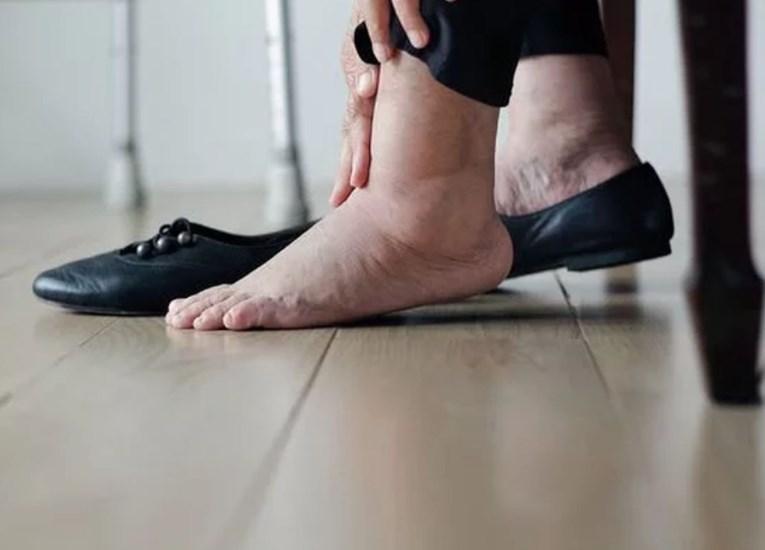 Как проявляется диабет 2 типа: могут возникать отеки разных участков тела
