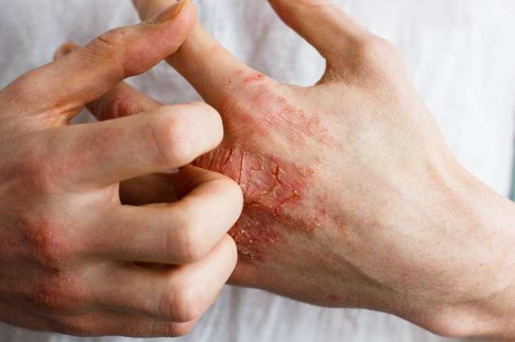 Врачи назвали пять признаков авитаминоза