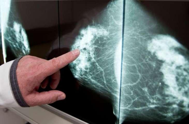 Медики назвали ранние симптомы разных видов рака