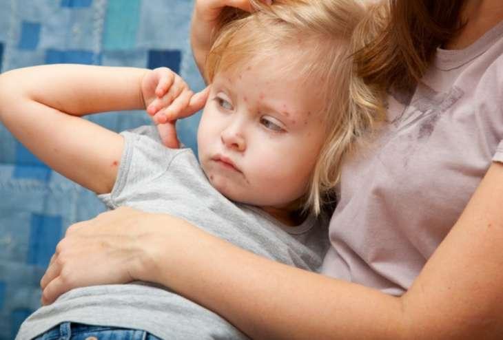 Корь: симптомы, профилактика и лечение болезни