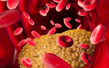 Повышенный холестерин: этот продукт снижает уровень холестерина - доказано исследованиями
