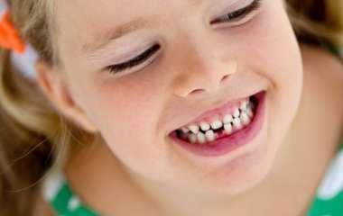 Удаление молочных зубов у детей: советы родителям