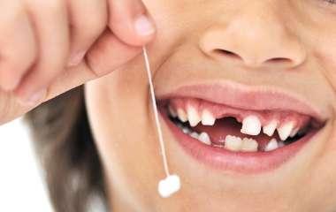 4 причины почему у ребенка крошатся зубы