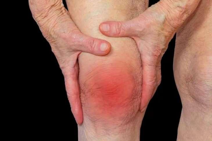 Врачи рассказали, как уберечься от артрита