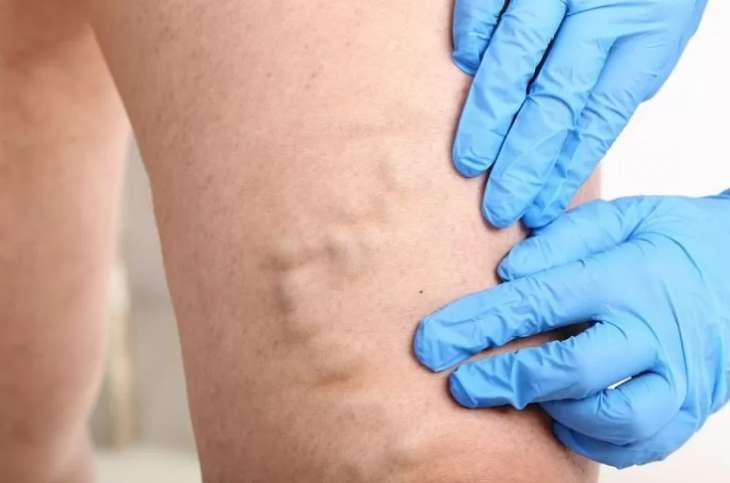 Врач назвал причины возможного отрыва тромба
