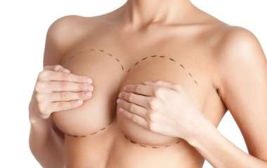 Маммопластика: операции по увеличению груди
