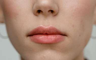 Бессонница и герпес: врач объяснила особенности весеннего авитаминоза