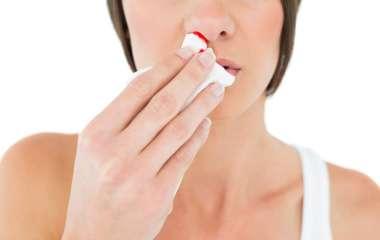 10 причин носового кровотечения