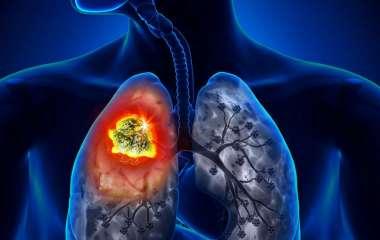Назван неочевидный симптом рака легких