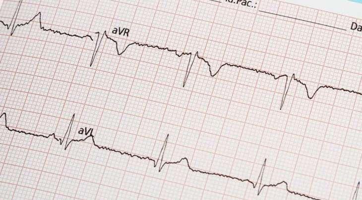 Терапевт назвала нетипичный признак инфаркта миокарда