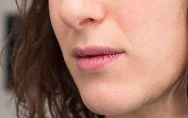 Врач назвала трещинки в уголках губ симптомом опасного заболевания