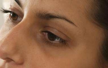 Невролог назвал круги под глазами симптомом опасных заболеваний