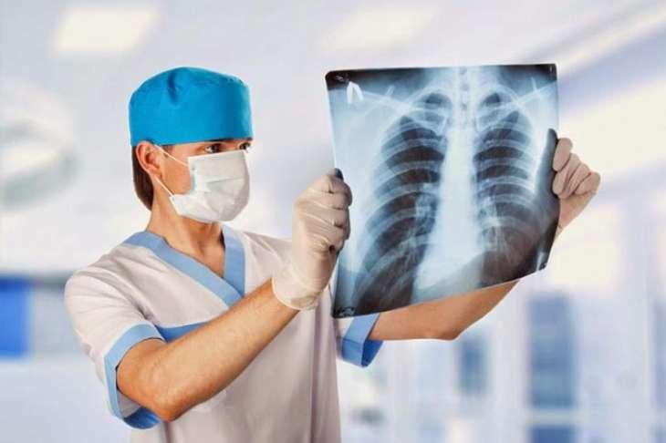 Туберкулез: как проявляется болезнь, симптомы и профилактика