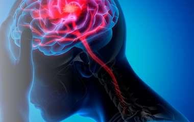 Причины и профилактика ишемических инсультов