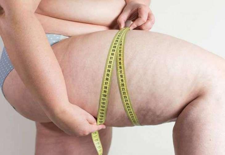 Ученые назвали причину отложения жира на бедрах