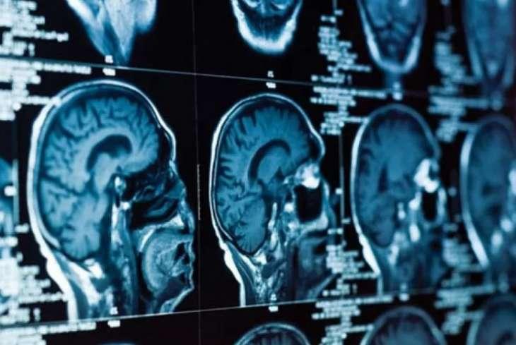 Ученые назвали простой способ поддержать силу ума после 30 лет