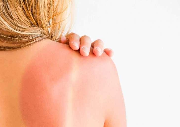Солнечный ожог: чем мазать и как лечить. Советы врача