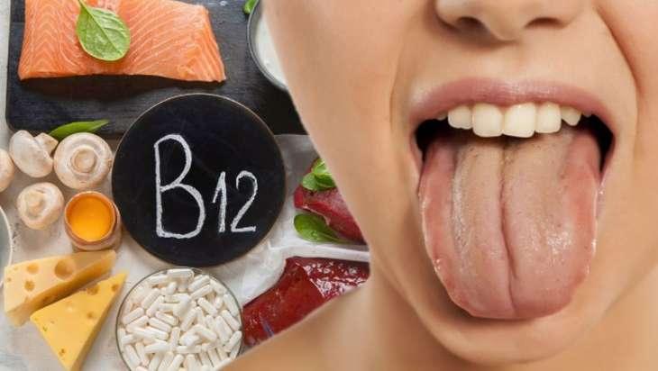Признаком дефицита витамина B12 назвали необычное состояние языка
