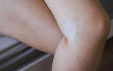 Флеболог назвал способы избежать варикоза
