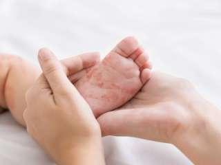 Иммунолог перечислил факторы, влияющие на развитие аллергии у детей