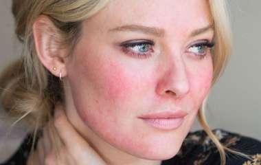 6 способов восстановить обветренную кожу
