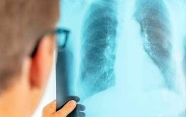 Врачи предупредили о неприметном симптоме рака легких