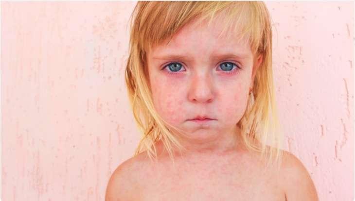 Как проявляется герпес 6 типа у детей