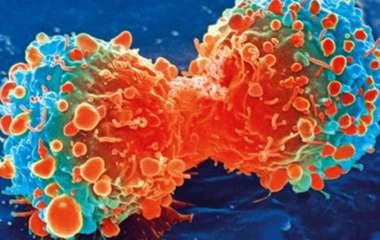 Ученые назвали основную причину возникновения рака