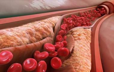 Симптомы атеросклероза: главные признаки плохого состояния артерий