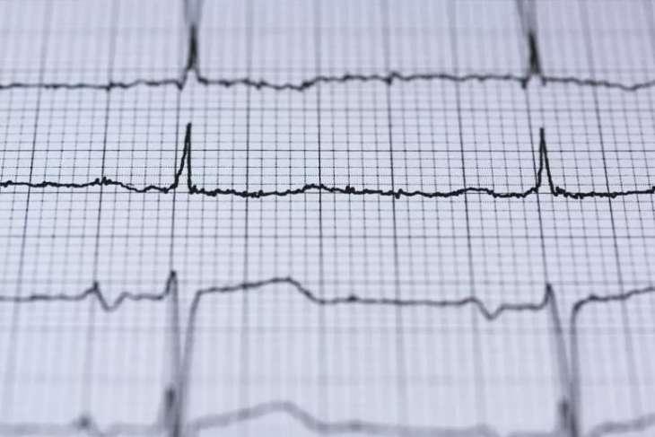 Медики назвали часто игнорируемые признаки инфаркта у женщин