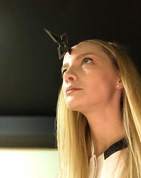 Екатерина Вилкова с раной на голове фото